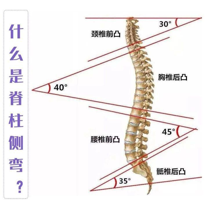 孩子有点驼背?小心!这很可能是脊柱侧弯!