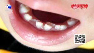 孩子出现双排牙怎么办?